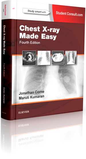 Chest X-ray Made Easy Book